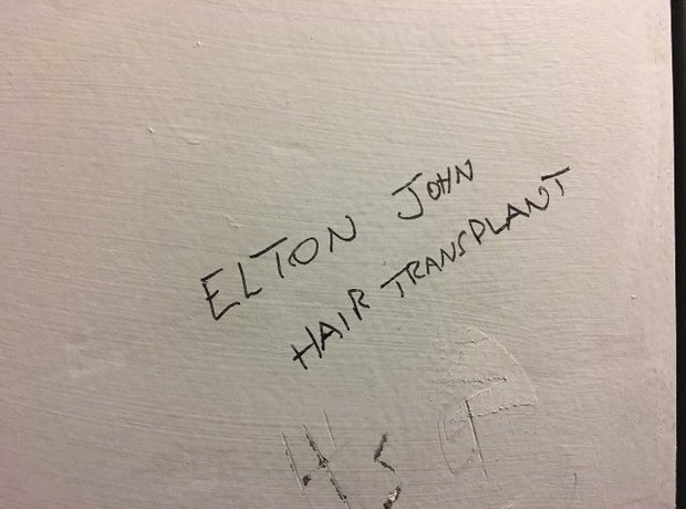 """Elton John Hair Transplant"""