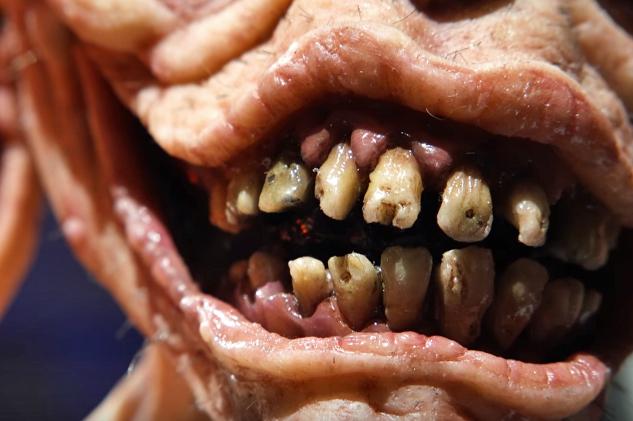 Ren's horrible teeth